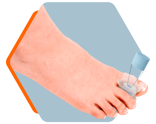 Advanced Toe Spreader