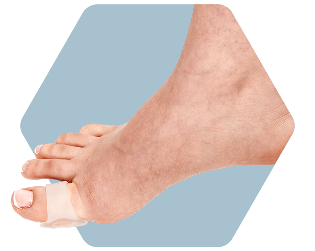 Toe Relief with Toe Loop